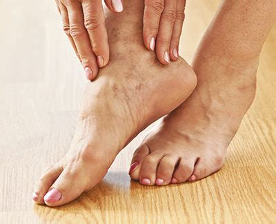 feet burning swelling hands swelling lexapro picture 2