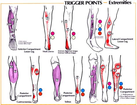 knee pain causes picture 10