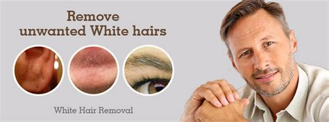 white hair removal picture 6