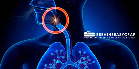 copd and sleep apnea picture 15