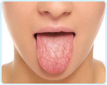 dry mouth teeth hurting metal taste picture 3