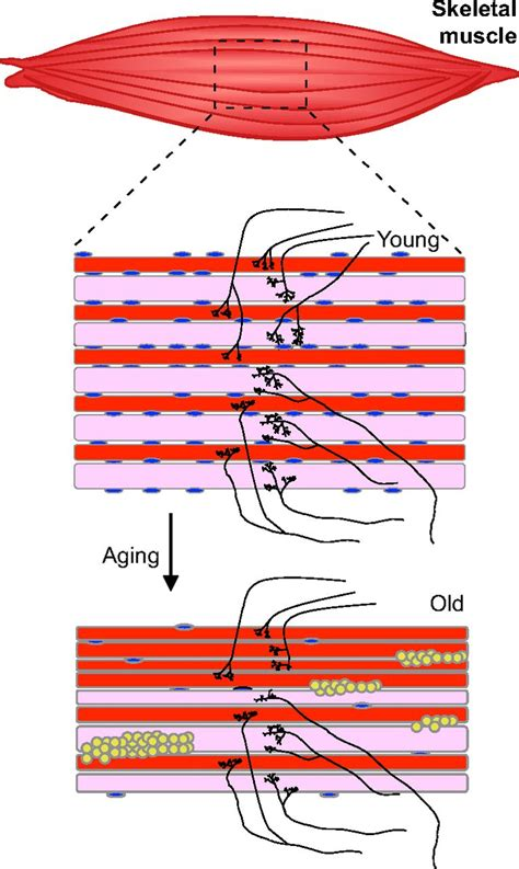 aging of a skeletal muscle paffenbarger picture 6