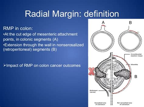 Colon cancer and picture 1
