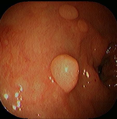 colon polyp picture 9
