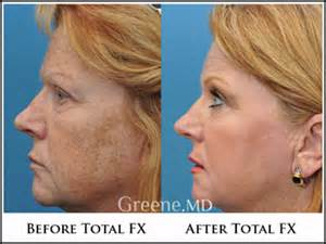 can a co2 total fx full face laser picture 1