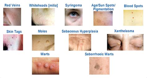 warts on face removal picture 9