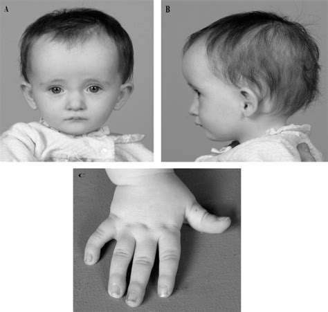 genetic disorder permanent h picture 6