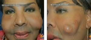 acne dermafillers picture 13