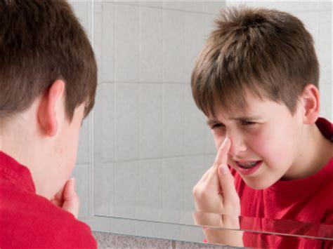 Acne and children picture 15