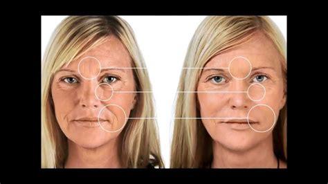 anti aging cream picture 9