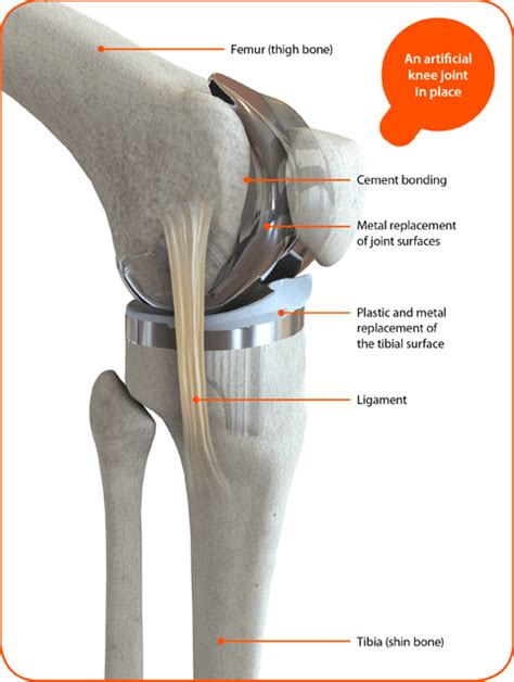 cost of knee joint replacement picture 13