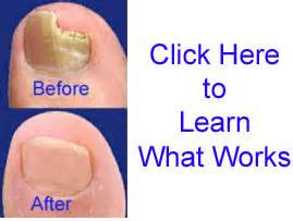 patholase's laser treatment of toenail fungus picture 2
