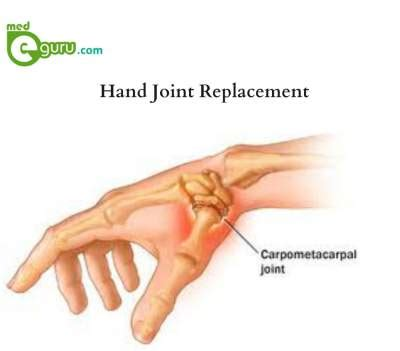 joint pain in hands picture 7