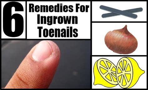 remedies for toenail fungus+ painting toenails picture 10