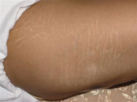 stretch marks up your legs picture 9