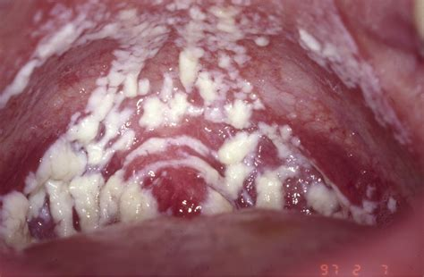 yeast infection of the viginal picture 14