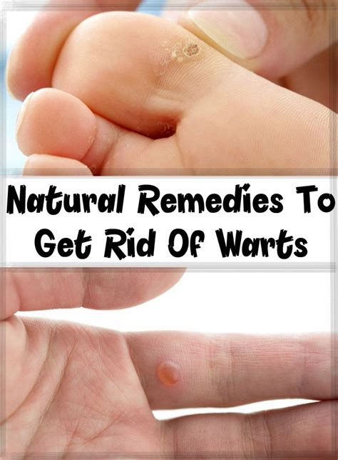 lip wart removal home remedies picture 2