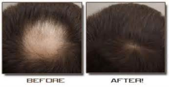 hair loss juicing picture 1