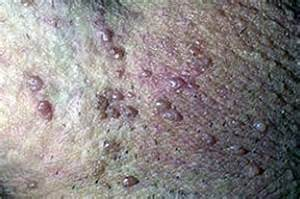 genitail warts picture 3