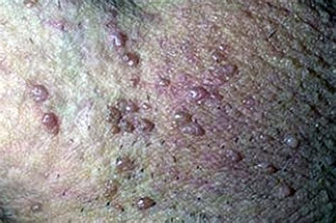 genital warts sl of iowa picture 6