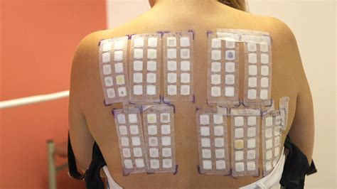 skin patch test picture 2