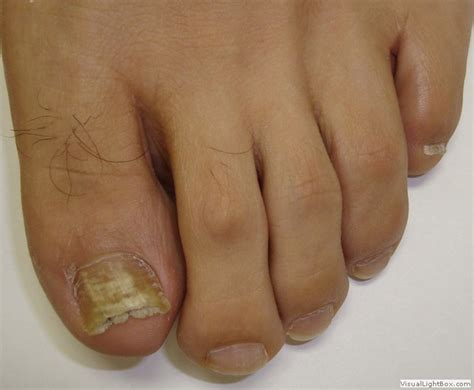 nail fungus therapy picture 5