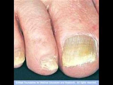 yellow thick toenail picture 1