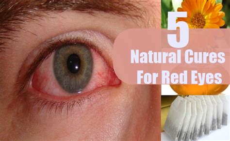 herbal remedies for red eyes picture 2