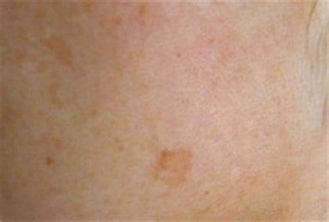 dark spots on skin picture 18