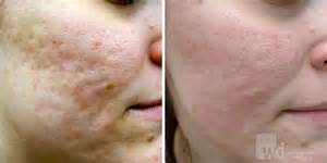 acne scare fillers picture 7