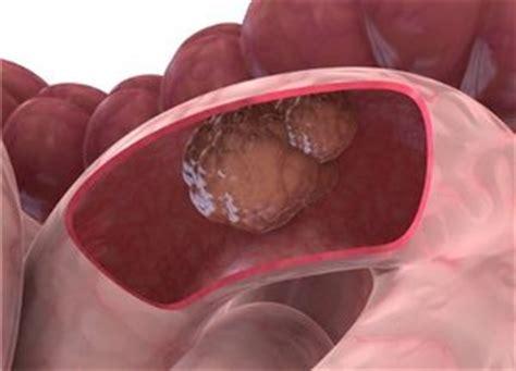 co je tumor colon picture 15