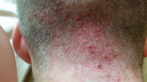 acne scalp picture 2