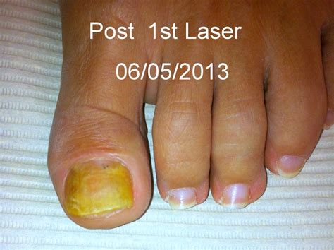 laser fungus treatment in virginia picture 10