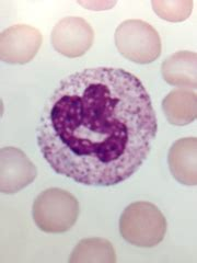 mataas na white blood cell picture 14