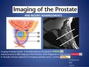 prostate ca picture 6