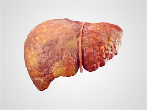 liver cirrhosis research picture 3