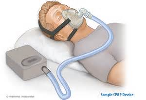 sleep apnea cures picture 3