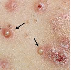 herpes or pimples picture 2