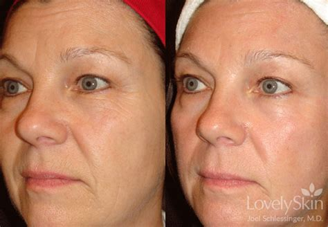 danger of fraxel skin treatment picture 10