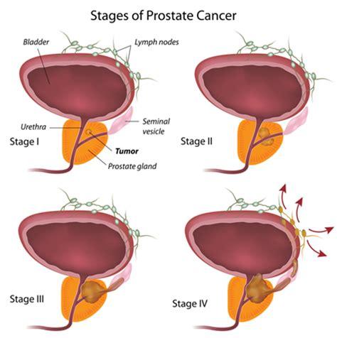 Prostate bone metastasis picture 11