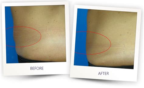 boesen laser skin enhancement picture 9