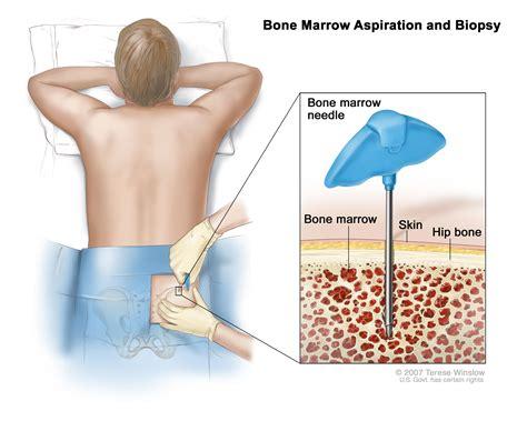 bone cancer spread to the liver + prognosis picture 11