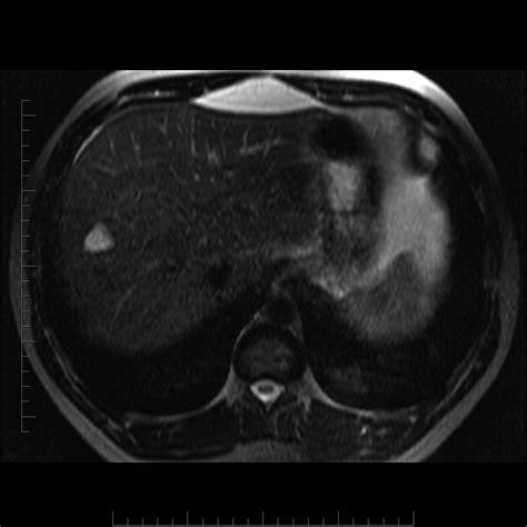 causes of liver hemangiomas picture 15