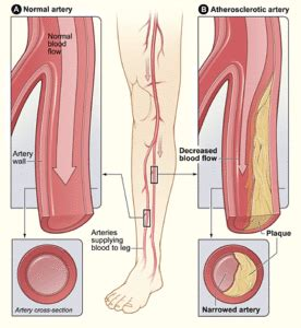 leg pain caused by colon picture 7