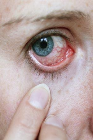 bacterial eye infection picture 1