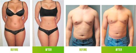 lipo and b12 shot reviews picture 2