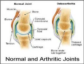 spot delayed osteoarthritis picture 5