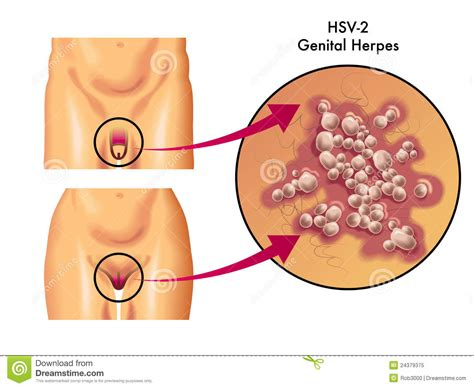 can i get breast augmentation with genital herpes picture 1