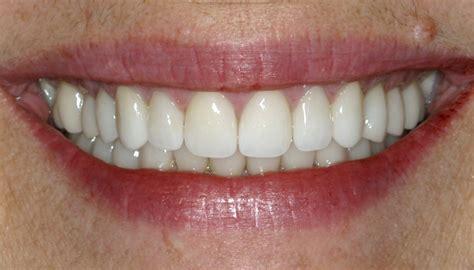 dentist porcelain teeth picture 11