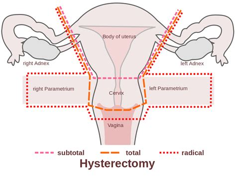 aging after full hysterectomy picture 7